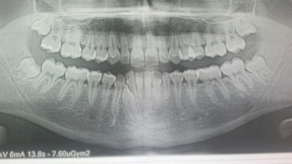 Зуб мудрости давит на нерв как быть 182