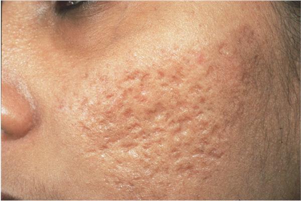 Дырки на кожу