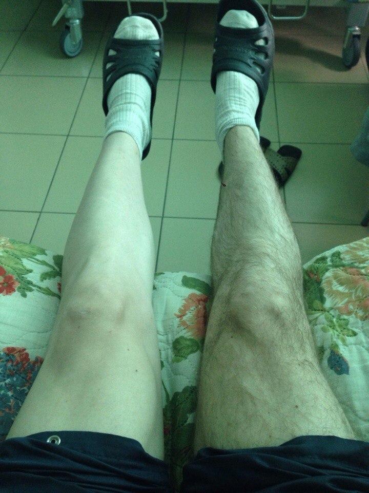 Операции на коленном суставе сестрорецк характеристика посттравматического артрита височно-нижнечелюстного сустава