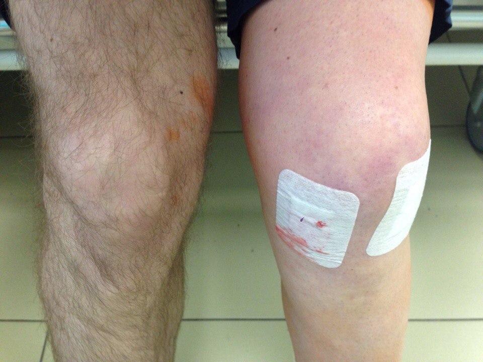 Операция по удалению коленного сустава в г уфе длительность операции неразвитый тазобедренный сустав у новорожденый 2 мес