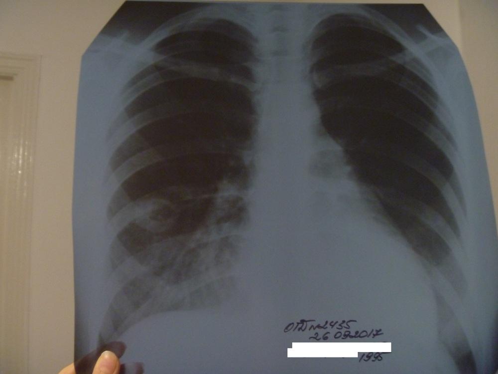 Не затягивается дырка при туберкулезе легких