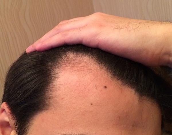 шелушится кожа после миноксидила