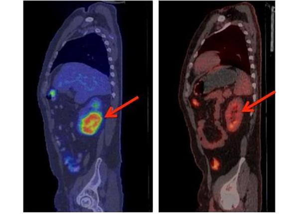 Срочная НОВОСТЬ!!! Американским ученым УДАЛОСЬ излечить 27 БЕЗНАДЕЖНО БОЛЬНЫХ РАКОМ Рак, Борьба с раком, Ученые, Изменение ДНК, Nplus1