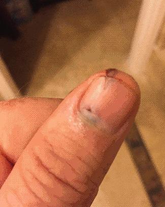 Процесс обновление ногтя после ушиба. Автор утверждает 5 месяцев прошло