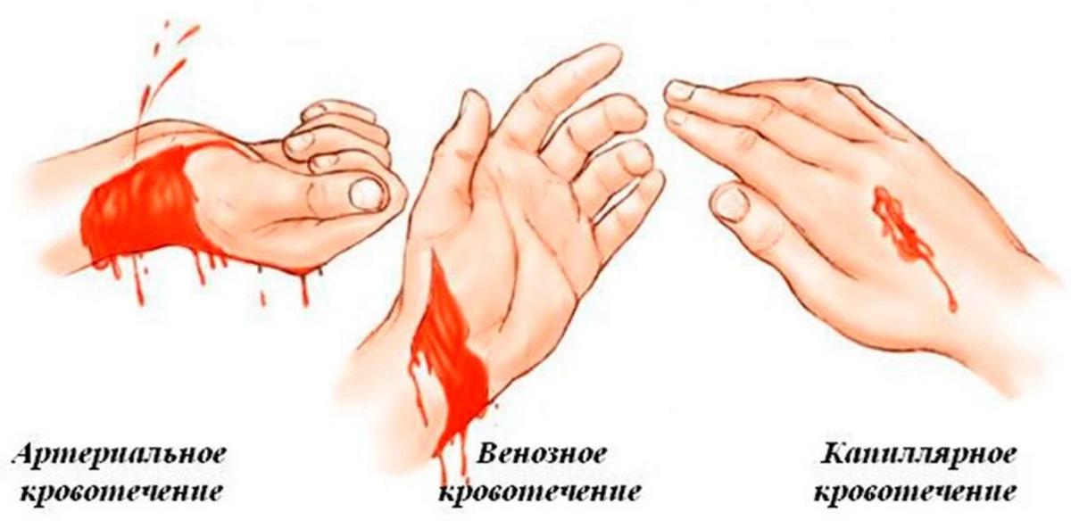 Виды кровотечений и их остановка Возникающее при повреждении вен