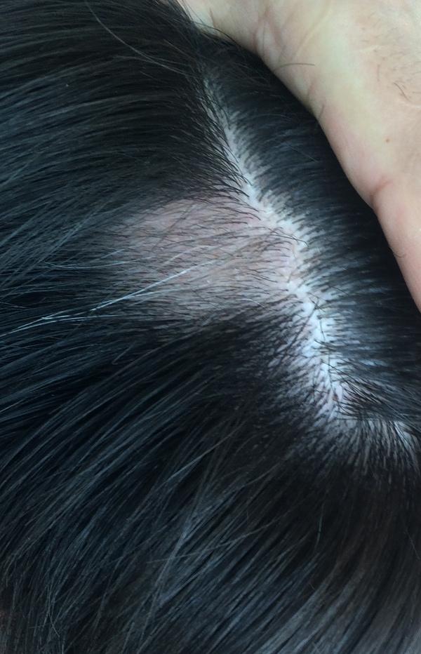 как называется болезнь когда не растут волосы нигде