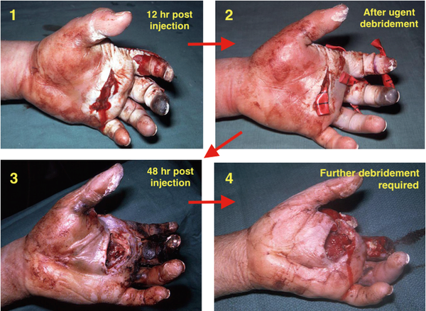 Травма от жидкости под давлением