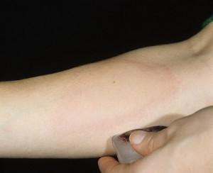 Распухшие суставы аллергия крапивница инъекции в суставы отзывы