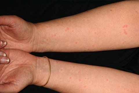 аллергия фото крапивница