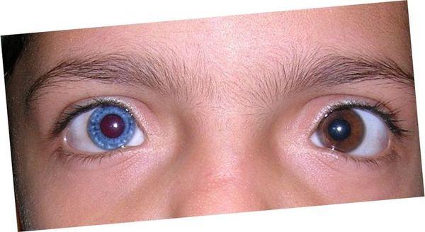 Может ли у человека меняться цвет глаз
