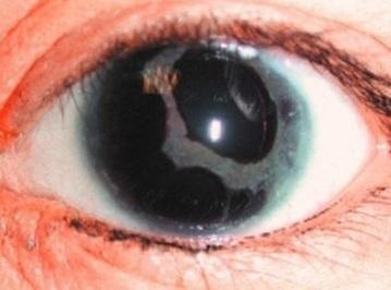Когда у детей устанавливается цвет глаз