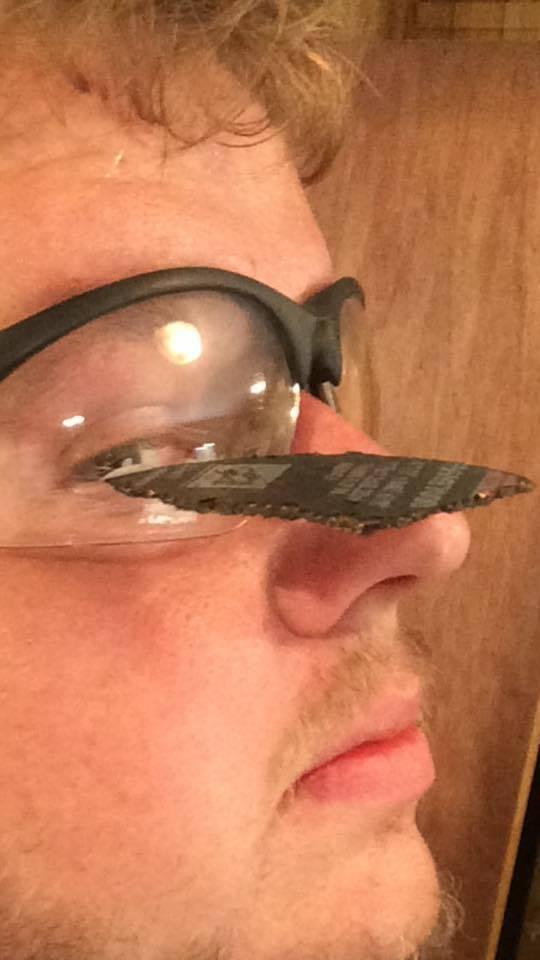 Струшка от балгарки попала в глаз