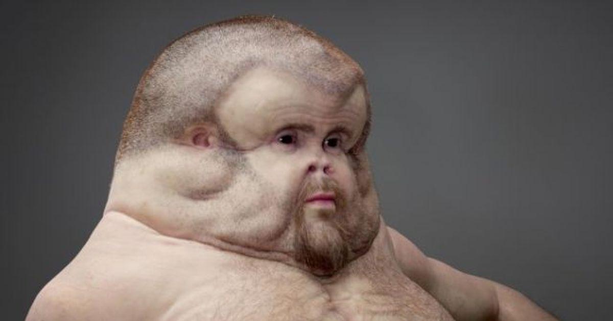 deformed face memes - 1200×630
