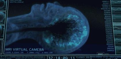 Одно Я, один мозг [5 попытка - Инструментальная версия или как наблюдают работу мозга] Мозг, МРТ, Работа мозга, Нейробиология, Речь, Наука, Исследования, Гифка, Длиннопост