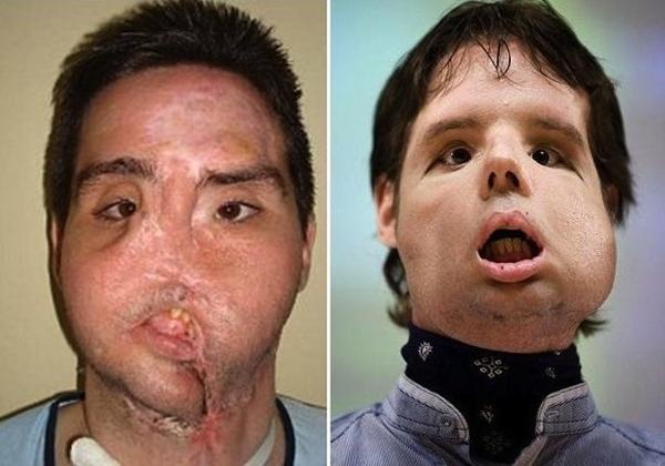 Пересадка лица: до и после пересадка лица, фото, длиннопост, жесть, Медицина