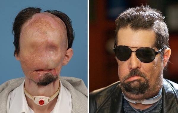 пересадка лица до и после фото