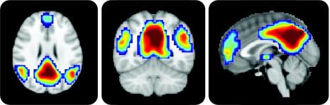 «Мы используем лишь 10% от всего мозга» и другие мифы Geektimes, Мозг, Воспоминания, Люси, Интеллект, Память, Моцарт, Мифы, Длиннопост