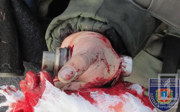 Во время учений в Военной академии граната пробила курсанту руку и застряла в кисти Украина, Жесть, Учения, ВСУ, Политика, Длиннопост