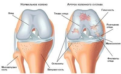Что нельзя делать при артрозе коленного сустава остеоартроз коленного сустава 1 степени лечение грязями