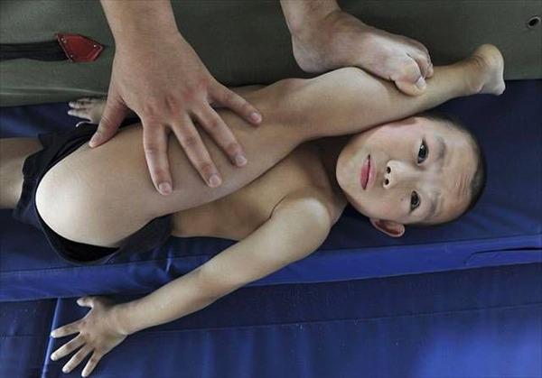Комплекс упражнений при артрозе коленного сустава в тренажерном зале thumbnail