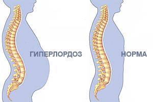 Ягодичные мышцы и особенности их тренировки. Фитнес, Анатомия, Ягодицы, Длиннопост