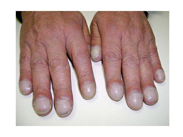 Пальцы Шрэка, к кому обращаться ? Медицина, Диагноз, Помощь, Длиннопост