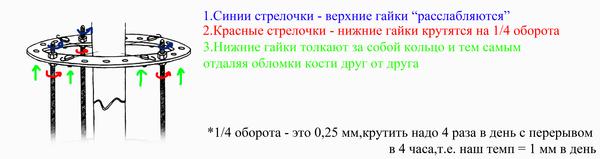 Аппарат Илизарова. Мой опыт Аппарат илизарова, Опыт, этапы, совет, больница, длиннопост