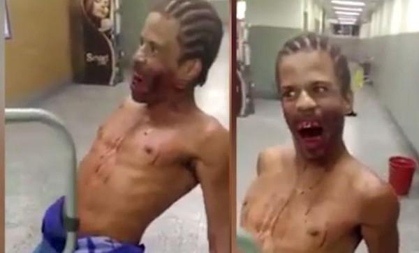 Бразилец-зомби разгуливал с огнестрельным ранением в голове по госпиталю Бразилия, новости, Госпиталь, ранение, огнестрел, зоомби, голова