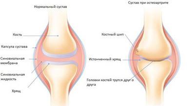 В суставах не хватает смазки мышцы плеча действующие на локтевой сустав