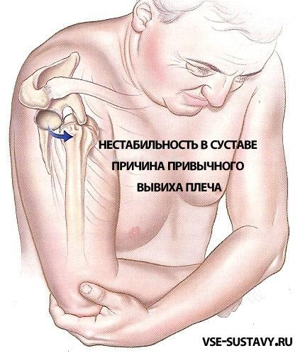 Плечо выходит из сустава как лечить внутрисуставные переломы реферат
