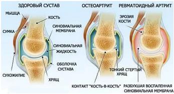 Коленный сустав боли при сгибании снашиваются суставы