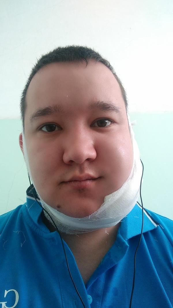 Как я оказался в реанимации. Часть 2 перелом челюсти, врачи, больница, операция, боль, Новокузнецк, длиннопост