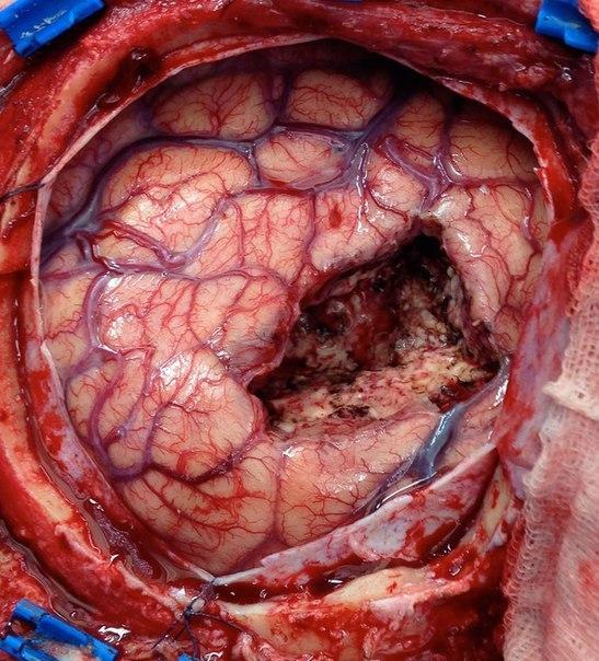 После удаления опухоли головного мозга.