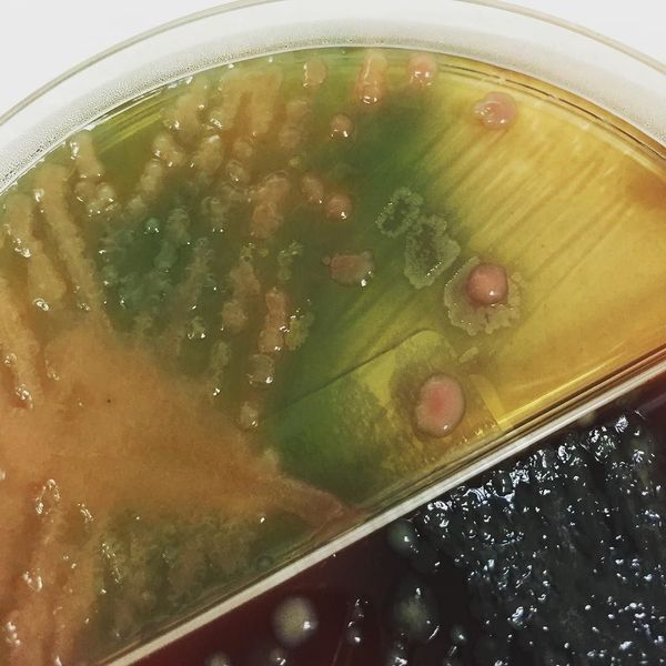 И снова растительные среды Длиннопост, Медицина, Микробиология, Среды, Бактерии, Фотография, Текст