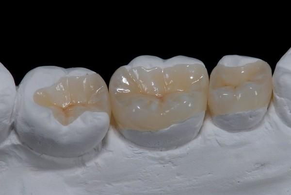 Доступная стоматология №5 : У меня !@#$%! Что делать? стоматология, моё, здоровье, зубы, красота, Медицина, длиннопост