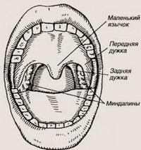 Хирургическое лечение в ЛОР-практике, часть 2 (горло). Медицина, аденоиды, тонзиллэктомия, миндалины, текст, горло, лор, длиннопост