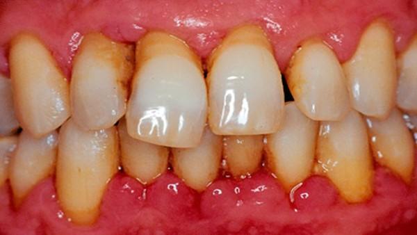 Доступная стоматология №6 : восьмёрки \ клиновидный дефект \ брекеты \ пародонтит длиннопост, моё, стоматология, здоровье, красота, Медицина, зубы