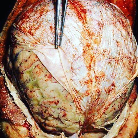 Головной мозг при менингите Фотография, Медицина, Жесть, Мозг, Менингит, Болезнь