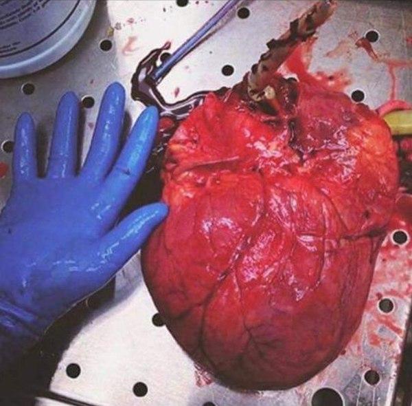Бычье сердце. Медицина, Фотография, ЗОЖ, Сердце, Сахарный диабет, Лишний вес, Сравнение, Жесть