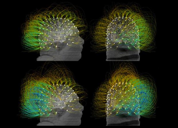 Электростимуляция частично вывела пациента из вегетативного состояния Наука, Новости, Медицина, Технологии, Вегетативное состояние, Электростимуляция
