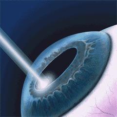 Лазерная коррекция зрения Лазерная коррекция, Зрение, Просьба, Гифка