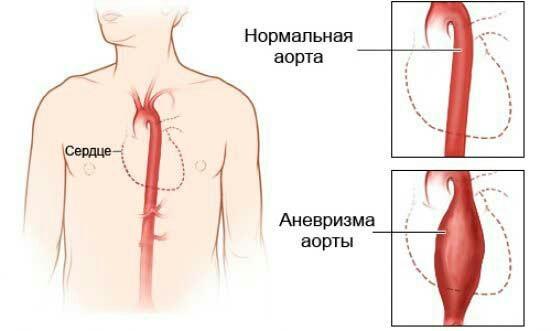 Аневризма аорты Аневризма, Здоровье, Обследование