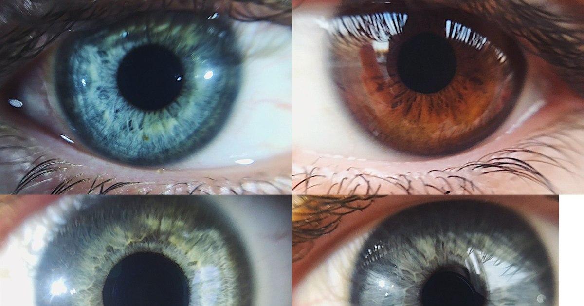 как на айфоне красиво сфотографировать глаз житии пишется, что