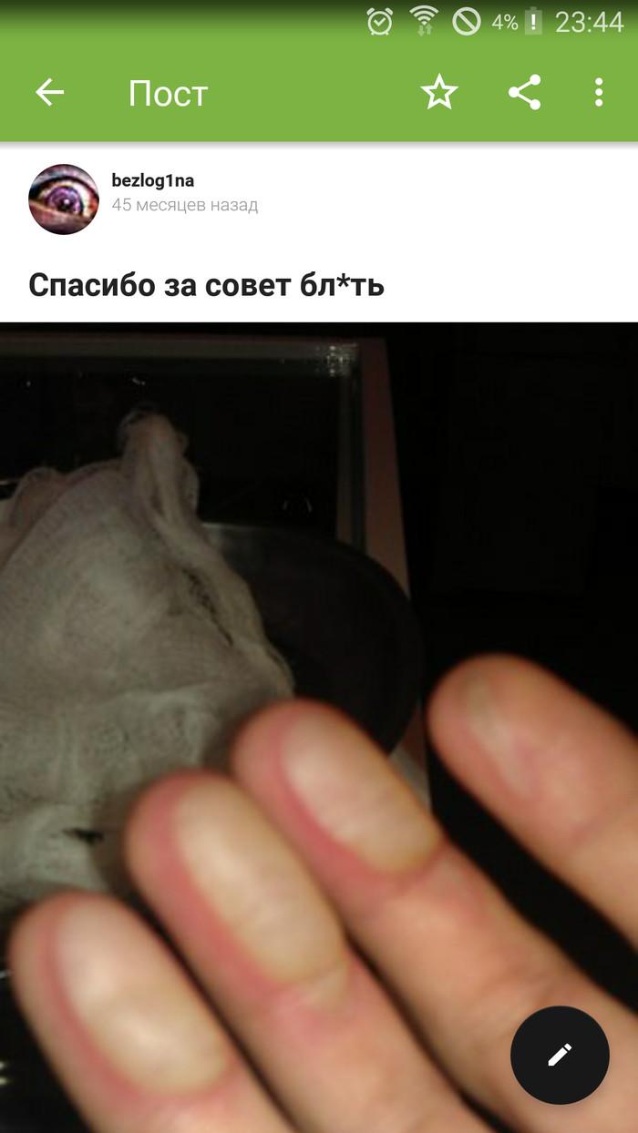 """Запоздалая """"слава"""". Помнится давным давно я скидывал фото своих обоженных пальцев Моё, Жесть, Байт, Длиннопост"""
