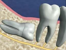 Про удаление зубов мудрости. Удаление, Зубы, Личный опыт, Сложность