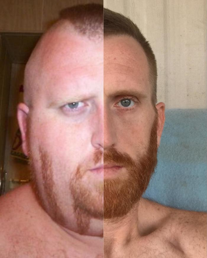 Изменение лица после потери 158 килограмм