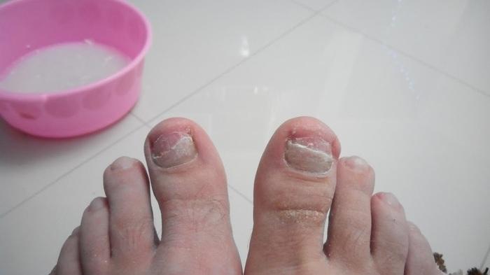 Про грибок ногтя