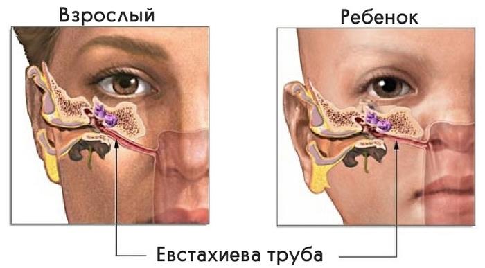 """Тубоотит, евстахеит, или """"заложенное ухо"""" - требуйте ETF-тест. Слух, Отит, Тугоухость, Лечение, Медицина, Лор, Уши, Ухо, Длиннопост"""