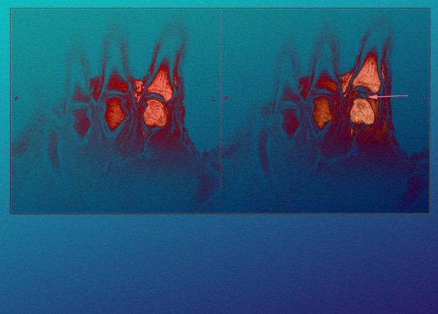 Математическая модель помогла расслышать схлопывание пузырьков в хрусте суставов Наука, Новости, Медицина, Физика, Хруст, Картинки
