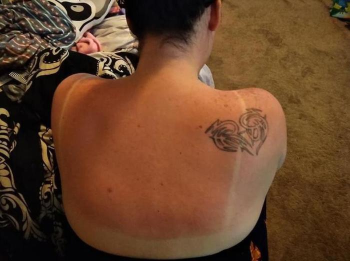 Техасский лайфхак: обожженную на солнце кожу спасетпенка для бритья! Солнечный ожог, Ожог, Длиннопост, Вредные советы, Фейк